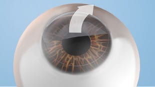 """Step 1bThe """"flap"""" is gently pulled back to allow access to the cornea, the area that needs to be reshaped."""