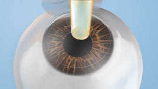 Step 2aA second laser – the excimer laser – is used to gently change the shape of the cornea according to the customized maps we made at your consultation. (This is the vision correcting portion).